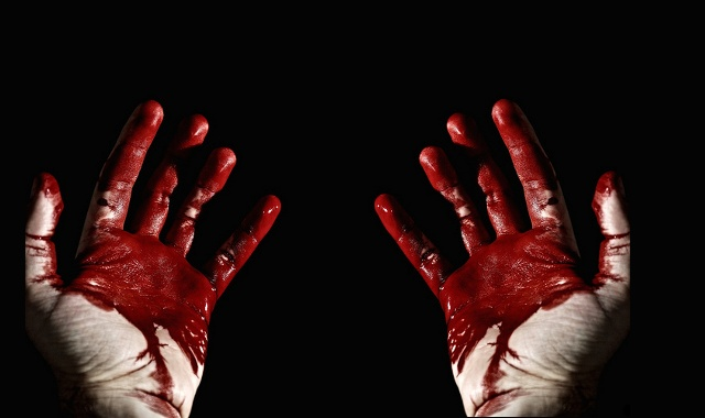 Bloody on hands